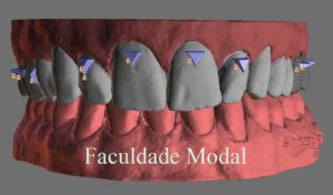 O uso de attachments no tratamento com alinhadores estéticos removíveis termoformados